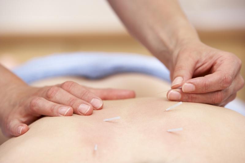 Volunteering as an Acupuncturist
