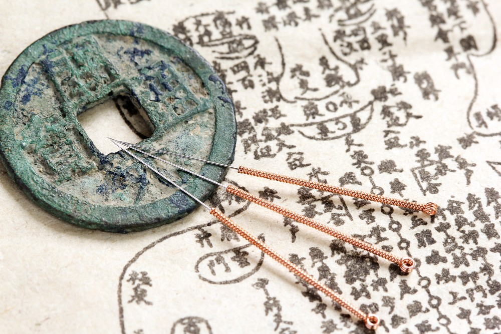Scientific Study Reports on Efficacy of Acupuncture for Obesity