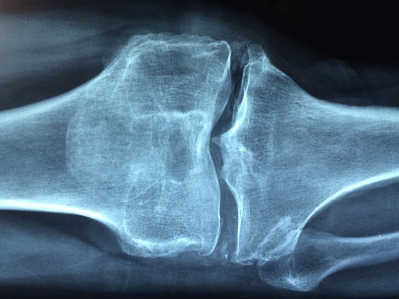 All You Need to Know About Osteoarthritis