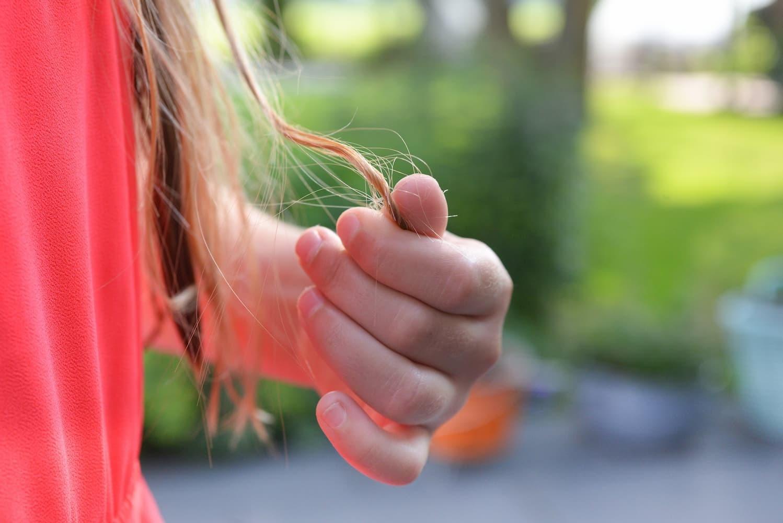 Hair Loss Basics: Causes, Types & Symptoms