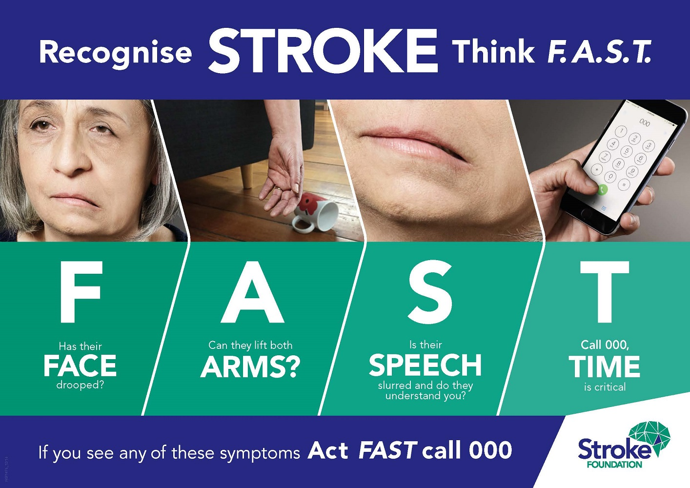 National Stroke Week 2019