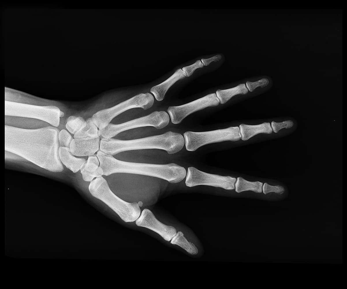 Diagnosis for rheumatoid arthritis