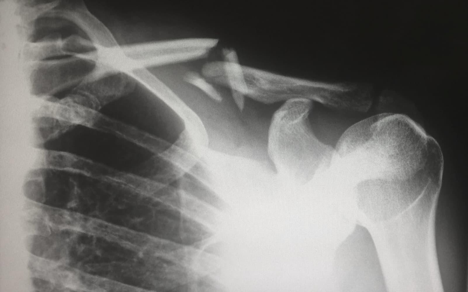 Bone fractures and broken bone