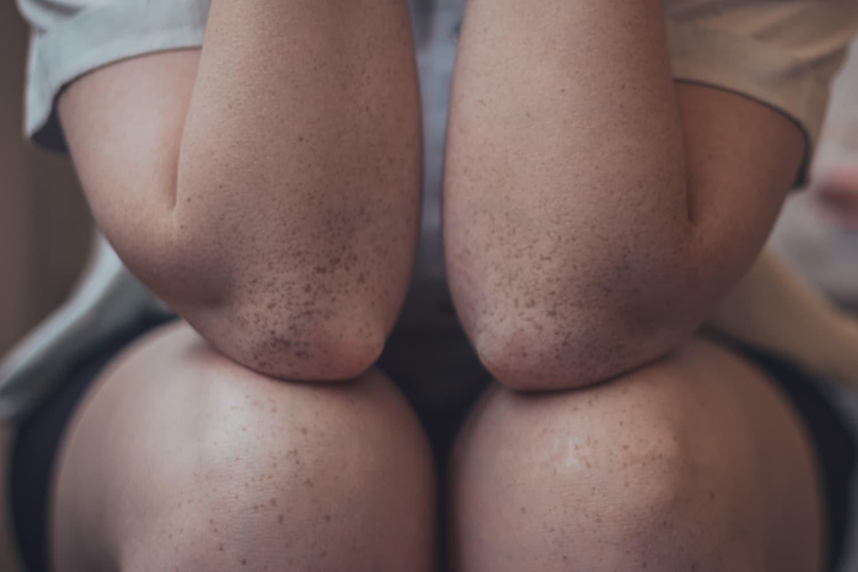 Osteoarthritis, most common form of arthritis