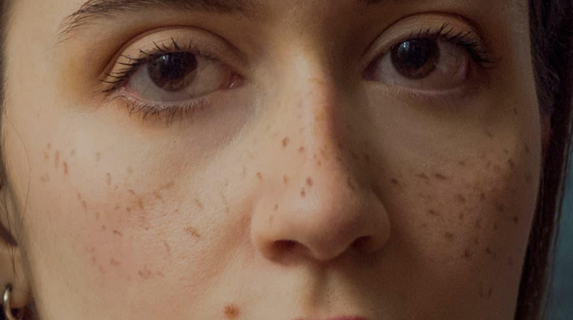 Age spots, common skin condition