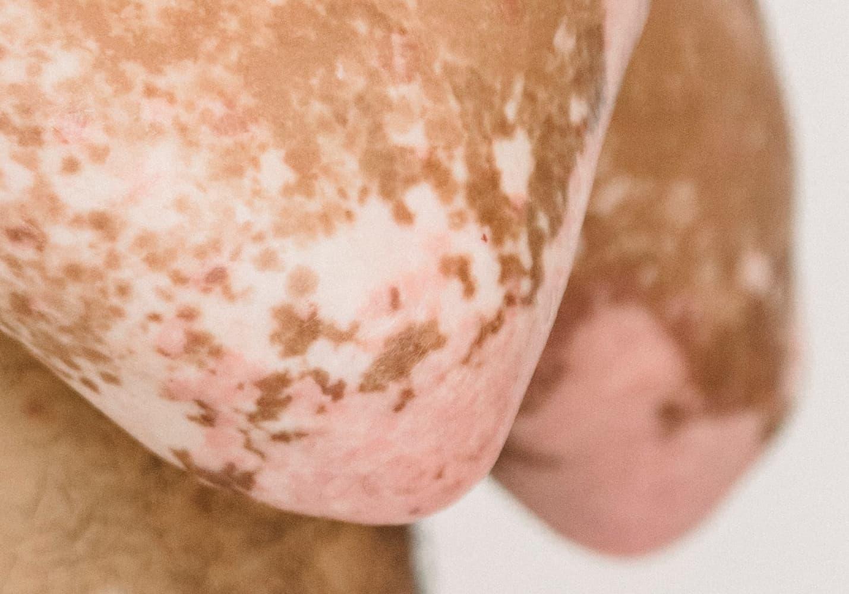 Psoriasis, common skin condition