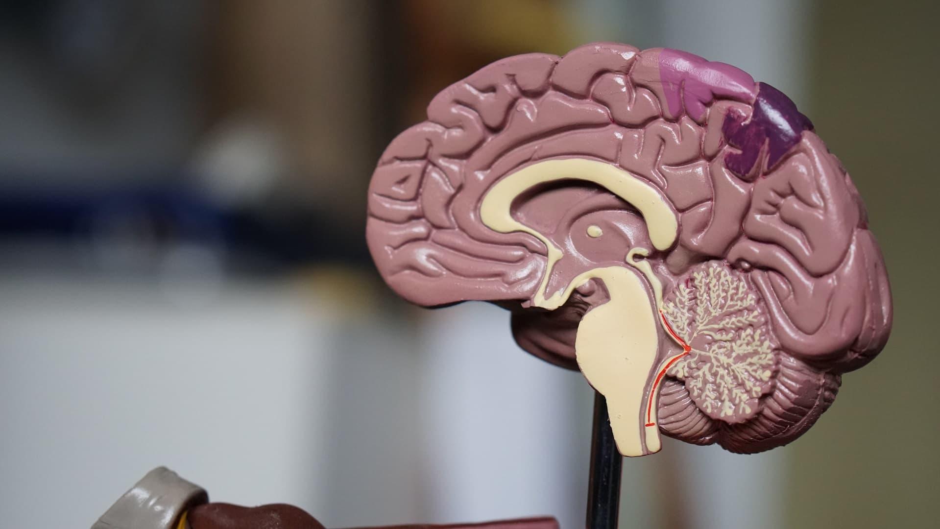 Brain Gym in Australia