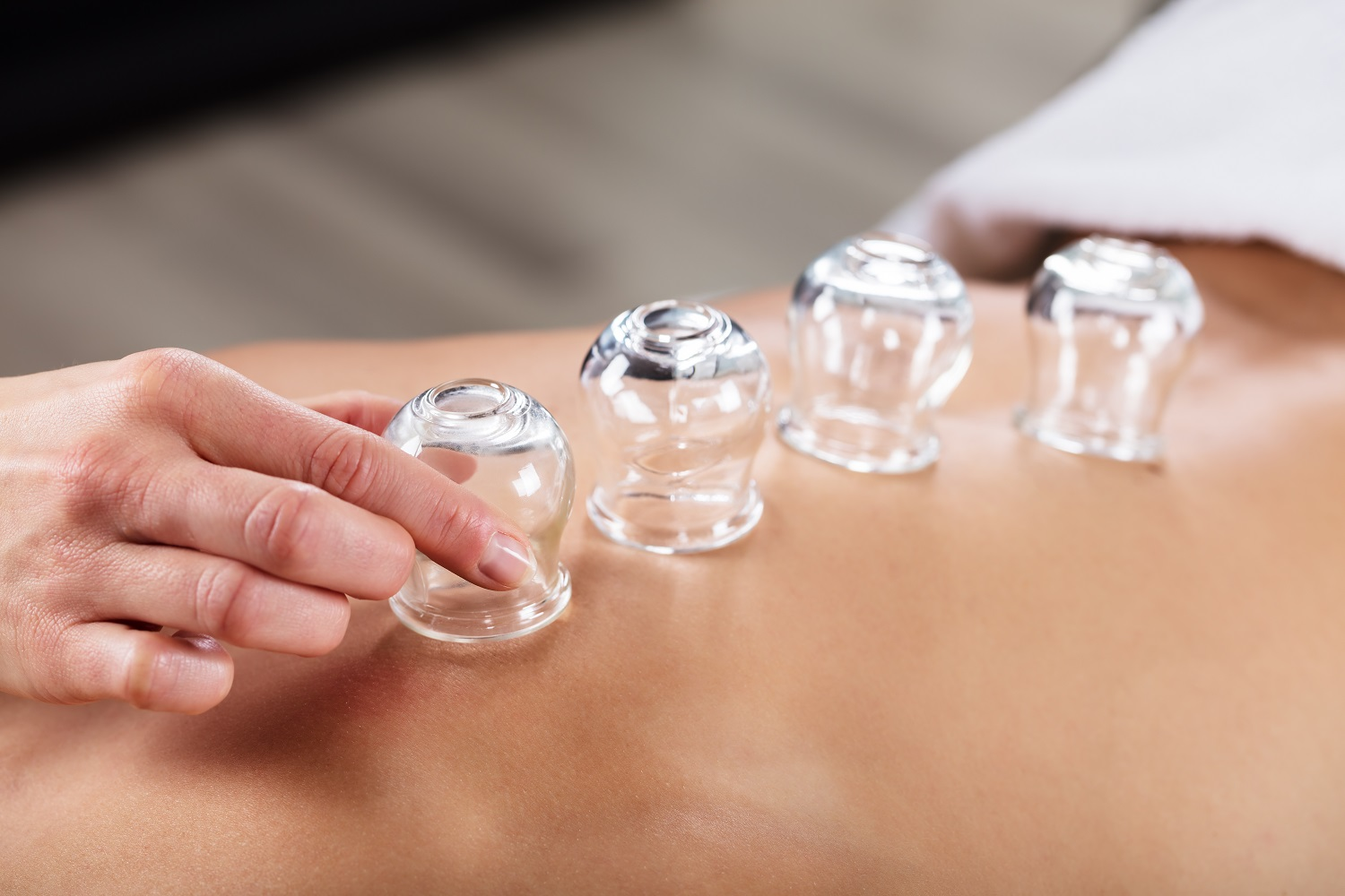 What is Cupping, How Does Cupping Work & What are the Benefits of Cupping?