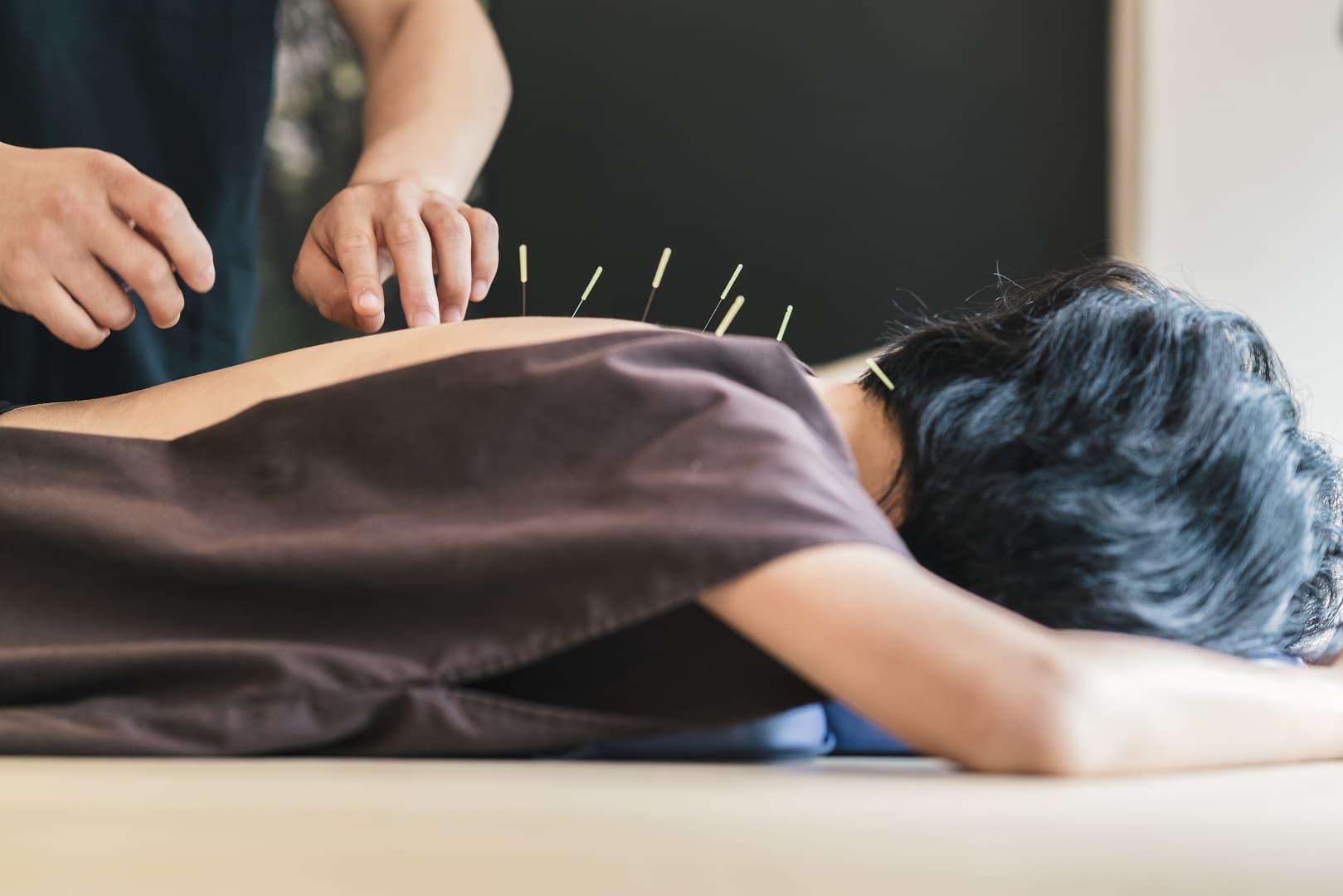 Acupuncture Courses in Australia