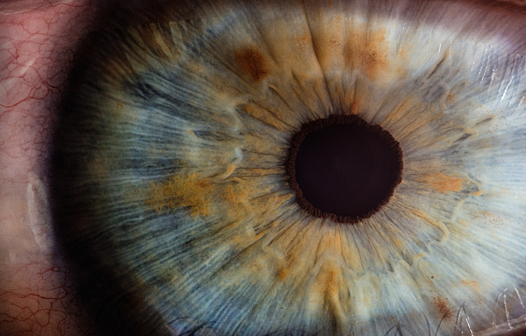Iridology Courses in Australia